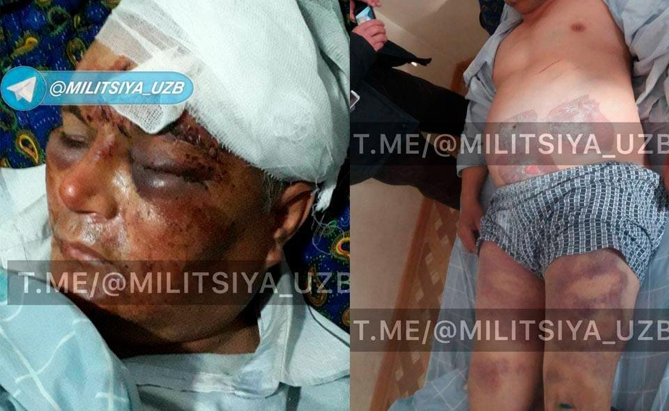 Правоохранители возбудили уголовное дело по факту жестокого избиения мужчины в Кашкадарье